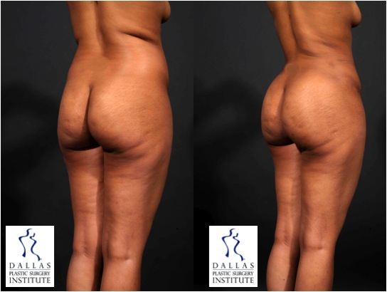 Brazilian Butt Lift Plastic Surgery | Dallas TX | Sam Jejurikar MD